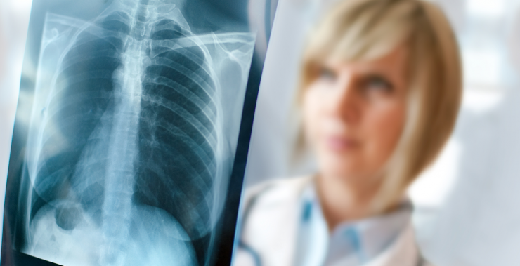 vitabook: Zu häufiges Röntgen vermeiden